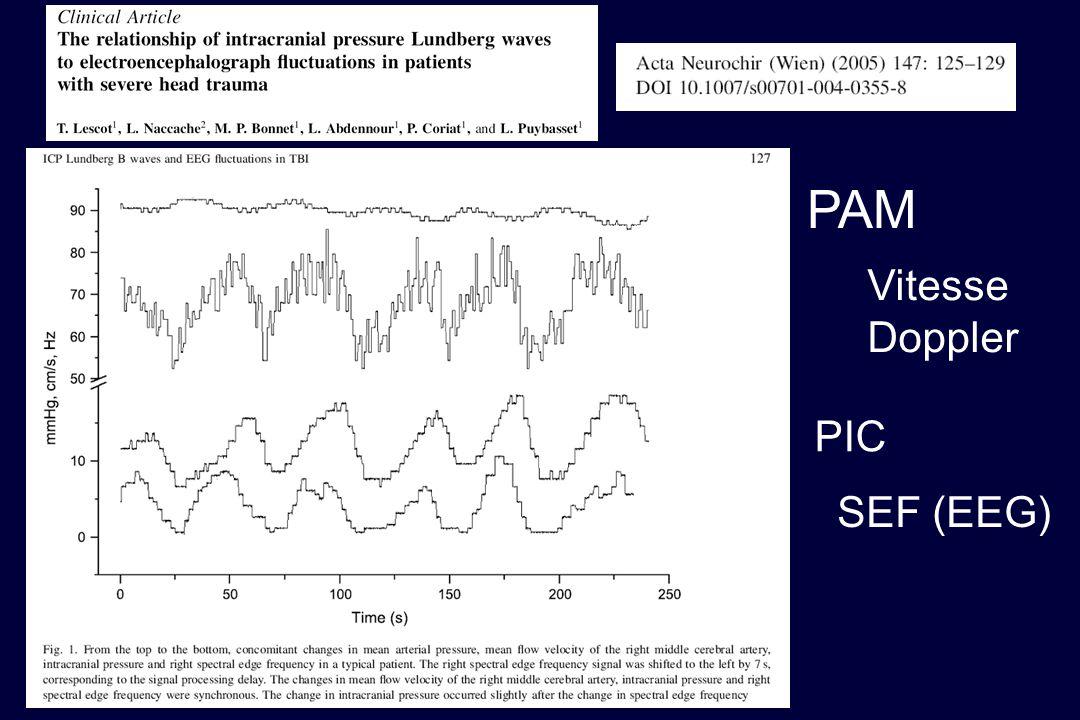 PAM Vitesse Doppler PIC SEF (EEG)