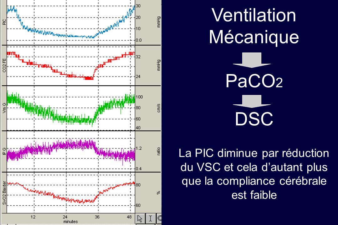 Queyrel Ventilation Mécanique PaCO 2 DSC La PIC diminue par réduction du VSC et cela dautant plus que la compliance cérébrale est faible