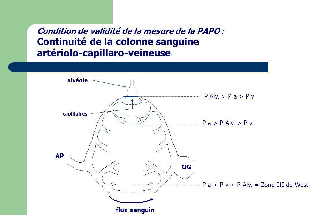 Condition de validité de la mesure de la PAPO : Continuité de la colonne sanguine artériolo-capillaro-veineuse OG AP capillaires flux sanguin alvéole