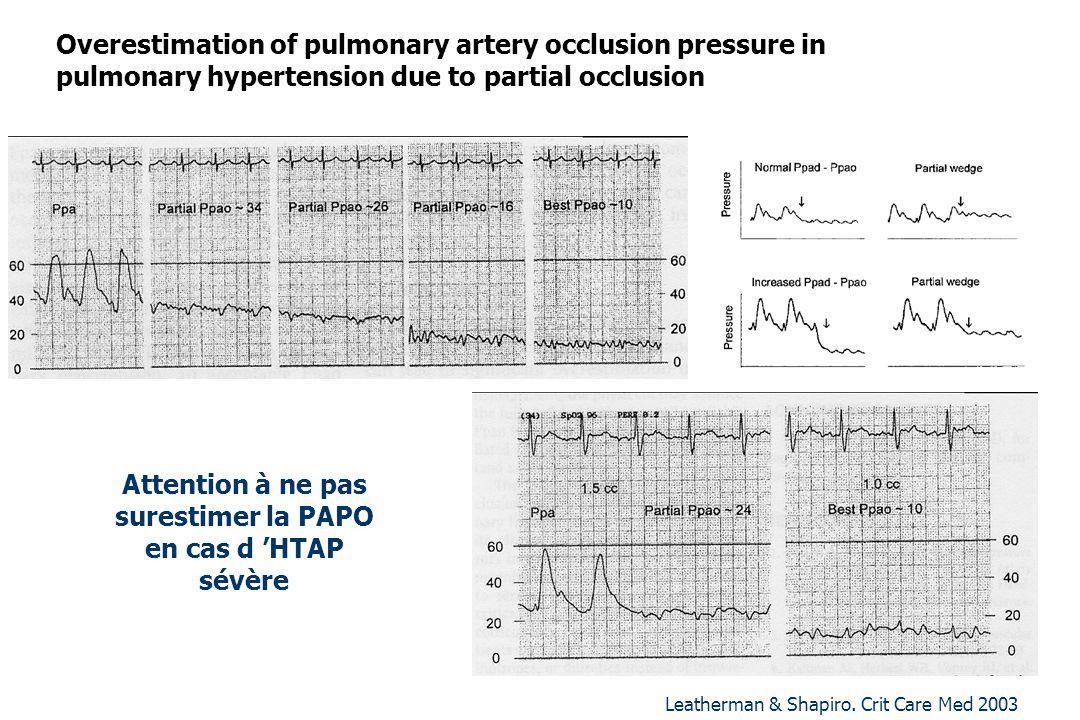 Attention à ne pas surestimer la PAPO en cas d HTAP sévère Leatherman & Shapiro. Crit Care Med 2003 Overestimation of pulmonary artery occlusion press