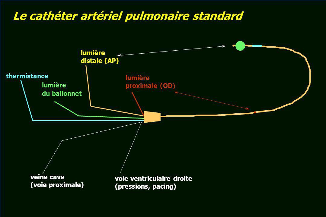 lumière distale (AP) lumière du ballonnet thermistance lumière proximale (OD ) veine cave (voie proximale) voie ventriculaire droite (pressions, pacin