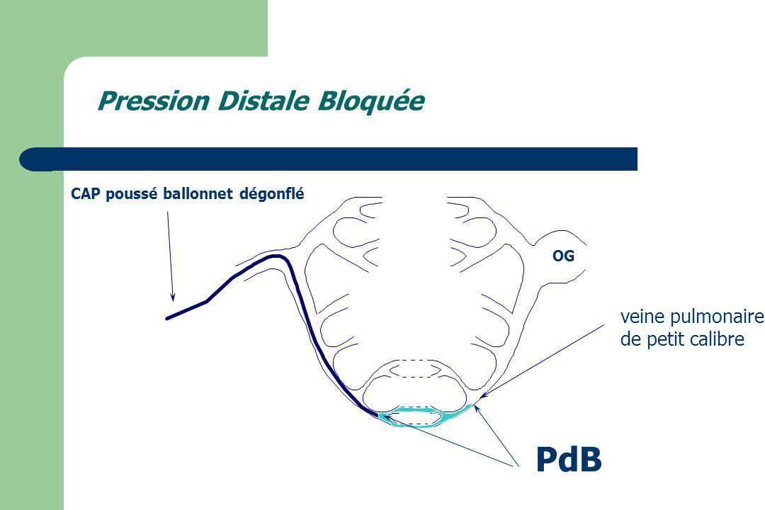 OG CAP poussé ballonnet dégonflé PdB veine pulmonaire de petit calibre Pression Distale Bloquée