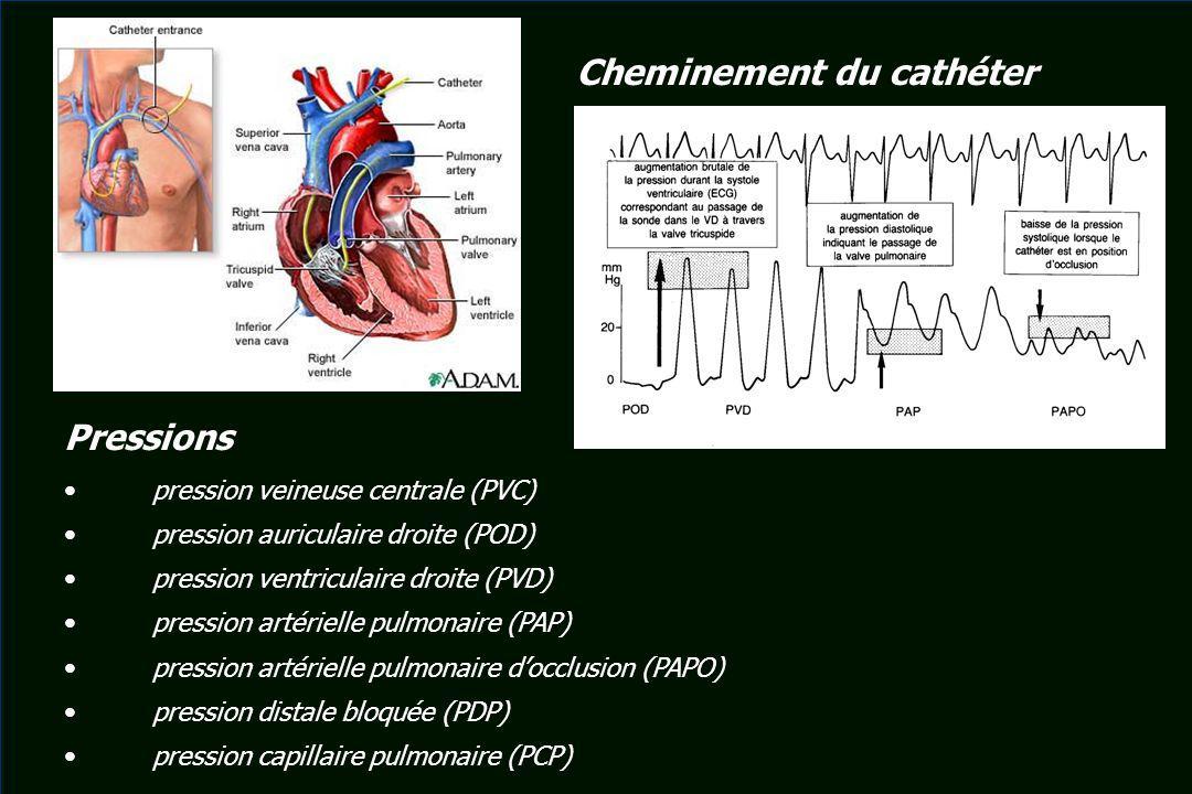 Pressions pression veineuse centrale (PVC) pression auriculaire droite (POD) pression ventriculaire droite (PVD) pression artérielle pulmonaire (PAP)