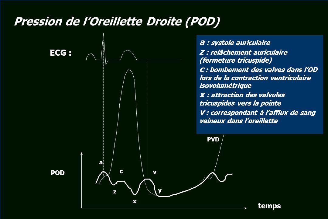 POD temps a z c x v y PVD ECG : a : systole auriculaire z : relâchement auriculaire (fermeture tricuspide) c : bombement des valves dans lOD lors de l