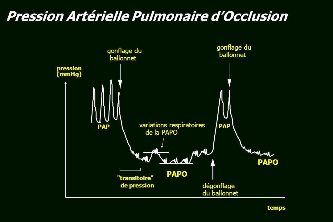 flux sanguin gonflage du ballonnet interruption du flux dans un secteur dépendant dune artère pulmonaire de gros calibre OG CAP PAPO veine pulmonaire de gros calibre Pression Artérielle Pulmonaire dOcclusion
