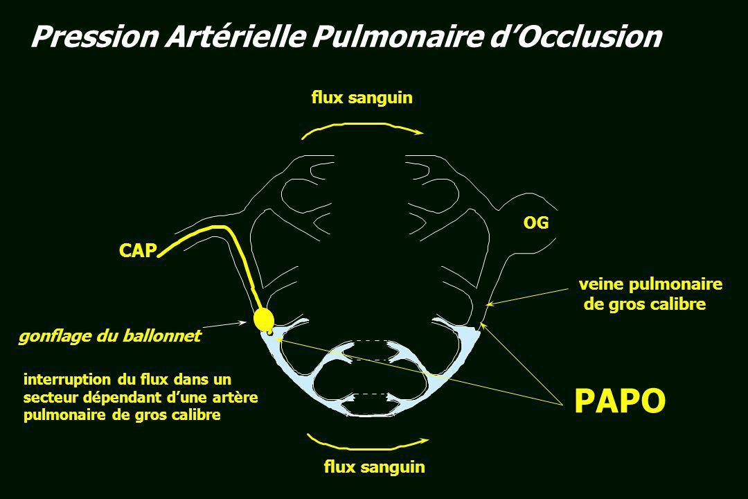 POD a z c x v y v a PAPO ECG La PAPO est une pression veineuse pulmonaire, reflétant la POG de façon amortie et retardée donc non superposable à lOD : a a : systole auriculaire z z : relâchement auriculaire (fermeture tricuspide) c c : bombement des valves dans lOD lors de la contraction ventriculaire isovolumétrique x x : attraction des valvules tricuspides vers la pointe v v : correspondant à lafflux de sang veineux dans l OD ( ou de sang veineux pulmonaire lOG)