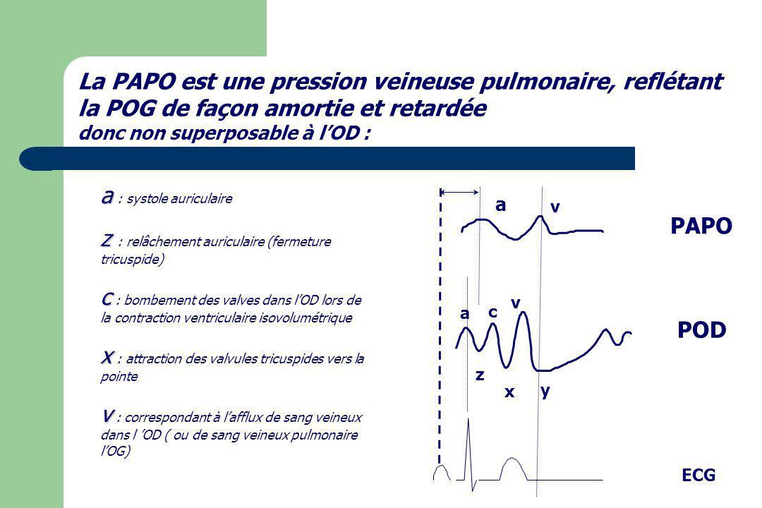 POD a z c x v y v a PAPO ECG La PAPO est une pression veineuse pulmonaire, reflétant la POG de façon amortie et retardée donc non superposable à lOD :