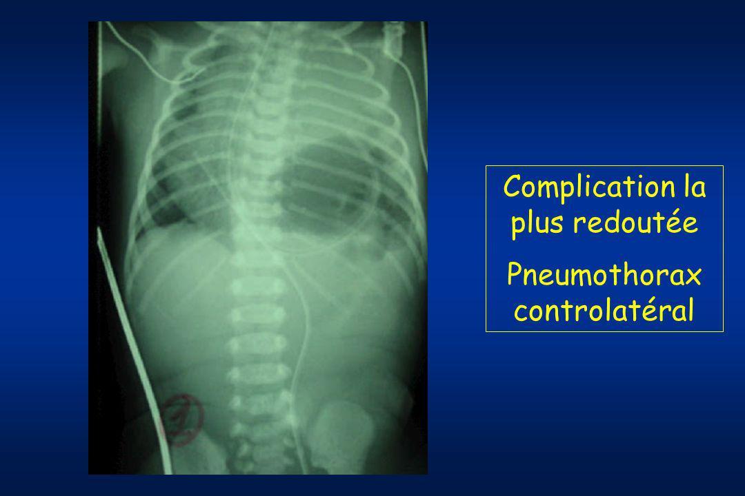 Complication la plus redoutée Pneumothorax controlatéral