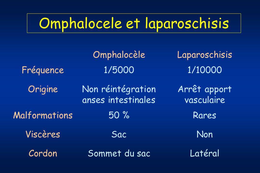 Omphalocele et laparoschisis OmphalocèleLaparoschisis Fréquence1/50001/10000 OrigineNon réintégration anses intestinales Arrêt apport vasculaire Malformations50 %Rares ViscèresSacNon CordonSommet du sacLatéral