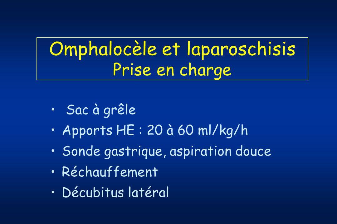 Omphalocèle et laparoschisis Prise en charge Sac à grêle Apports HE : 20 à 60 ml/kg/h Sonde gastrique, aspiration douce Réchauffement Décubitus latéral