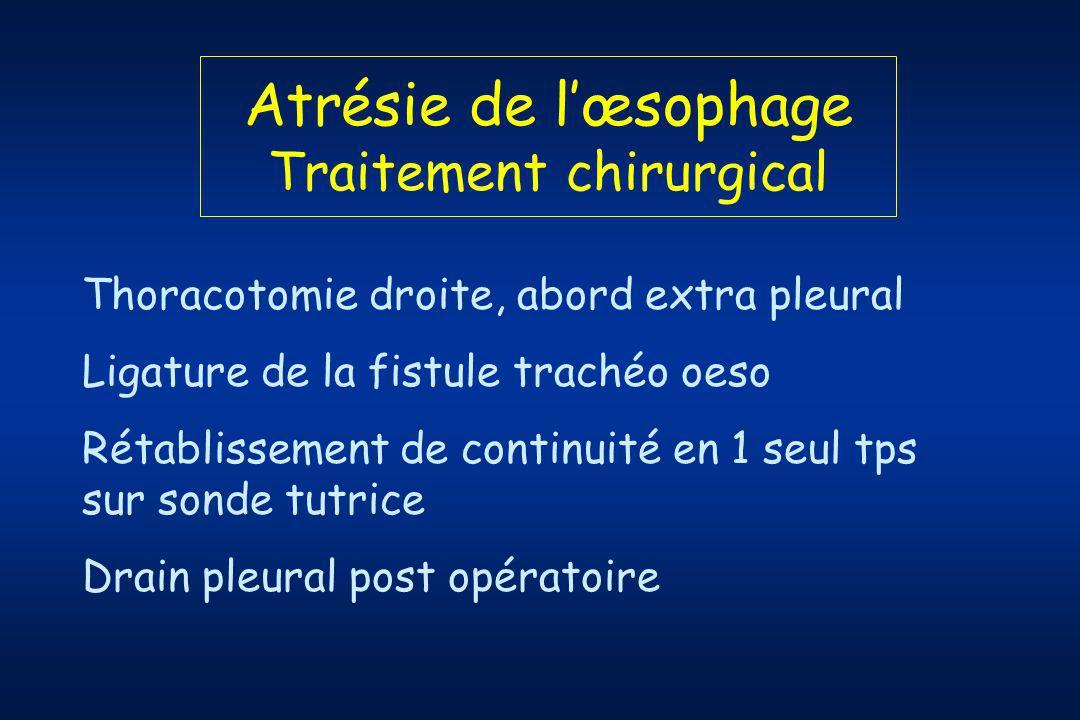 Atrésie de lœsophage Traitement chirurgical Thoracotomie droite, abord extra pleural Ligature de la fistule trachéo oeso Rétablissement de continuité en 1 seul tps sur sonde tutrice Drain pleural post opératoire