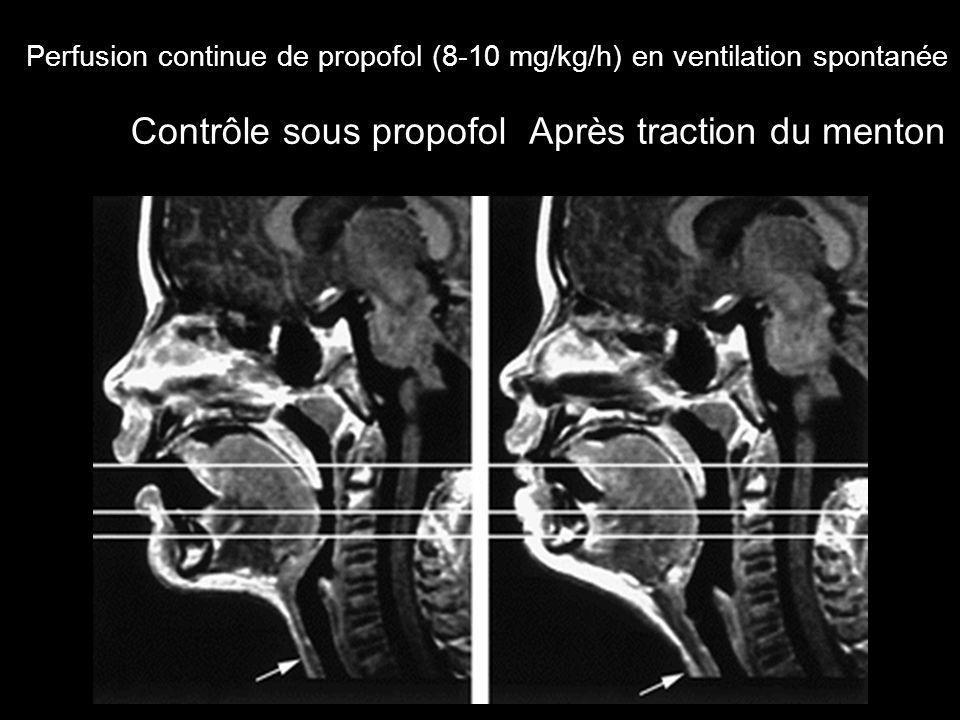 Perfusion continue de propofol (8-10 mg/kg/h) en ventilation spontanée Contrôle sous propofolAprès traction du menton