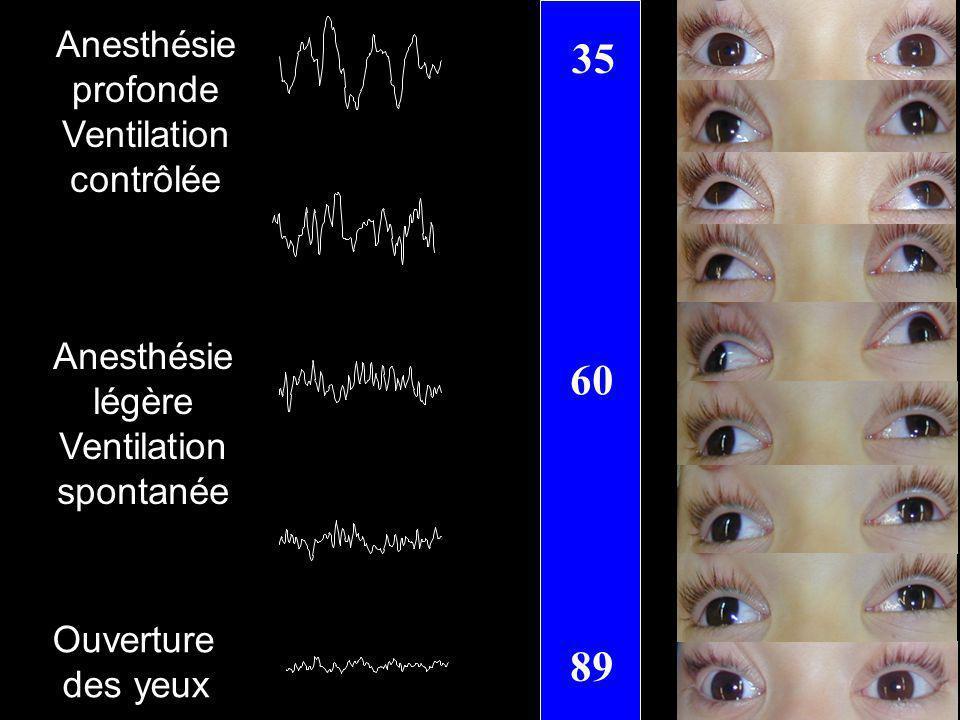 35 60 89 Anesthésie profonde Ventilation contrôlée Anesthésie légère Ventilation spontanée Ouverture des yeux