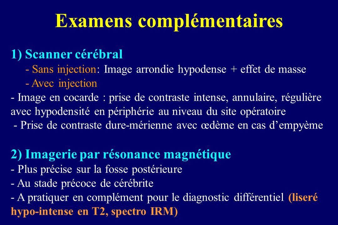 Examens complémentaires 1) Scanner cérébral - Sans injection: Image arrondie hypodense + effet de masse - Avec injection - Image en cocarde : prise de