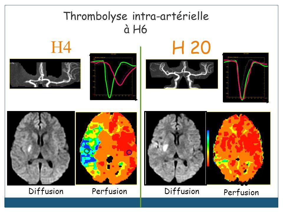 H4 Thrombolyse intra-artérielle à H6 DiffusionPerfusion H 20 Diffusion Perfusion