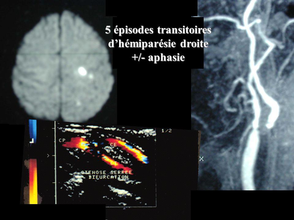 5 épisodes transitoires dhémiparésie droite +/- aphasie