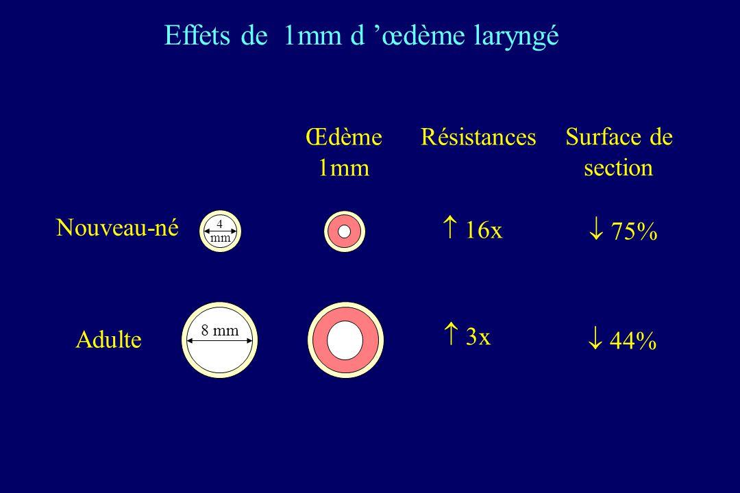 4 mm 8 mm Œdème 1mm Résistances Surface de section 16x 3x 75% 44% Nouveau-né Adulte Effets de 1mm d œdème laryngé