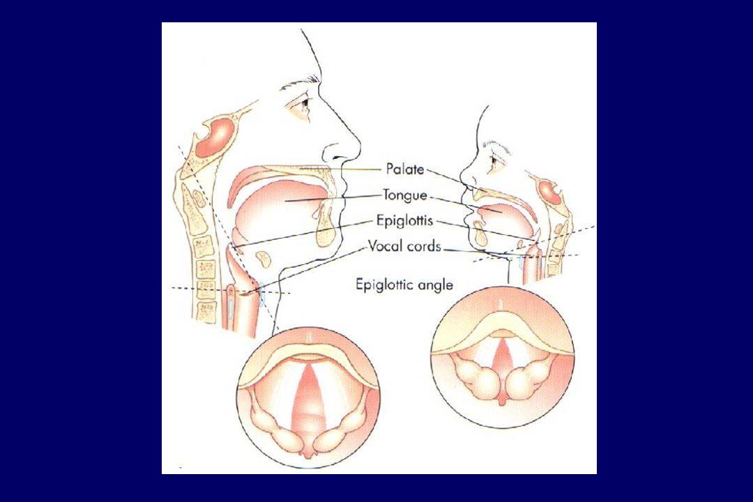 93 enfants programmés pour une chirurgie reconstructrice de l oreille (hypoplasie) Matchés avec des enfants contrôles sans anomalie faciale Difficultés d intubation % Uezono et al, Paediatr Anaesth 2001