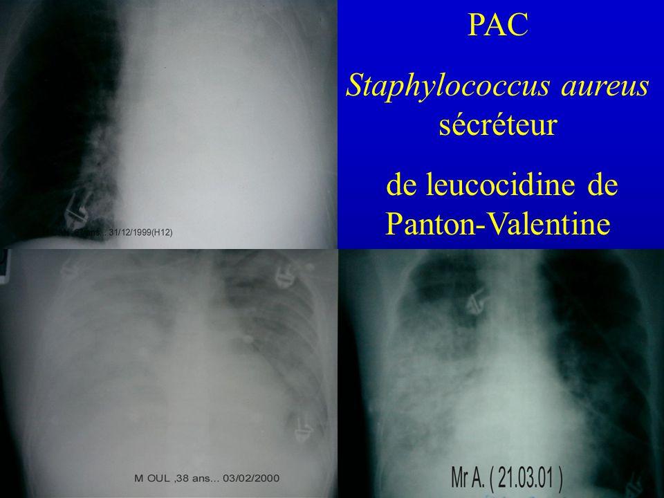 PAC Staphylococcus aureus sécréteur de leucocidine de Panton-Valentine