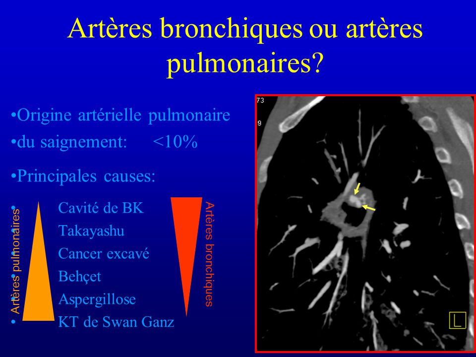 Artères bronchiques ou artères pulmonaires.