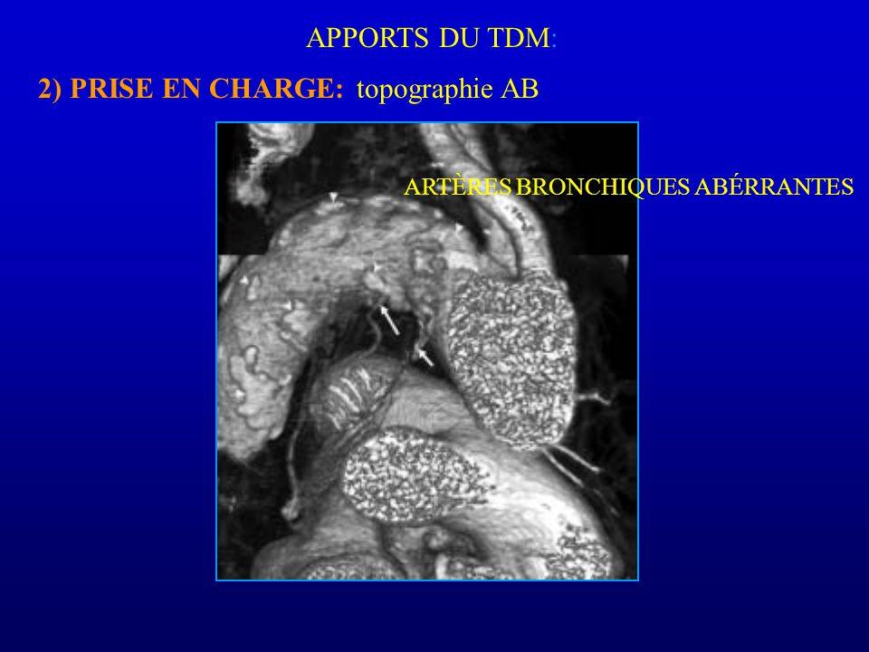 APPORTS DU TDM: 2) PRISE EN CHARGE: ARTÈRES BRONCHIQUES ABÉRRANTES topographie AB