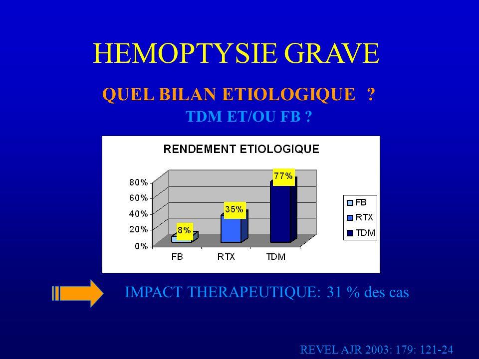 HEMOPTYSIE GRAVE QUEL BILAN ETIOLOGIQUE .
