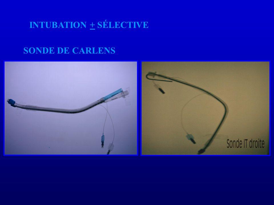 SONDE DE CARLENS INTUBATION + SÉLECTIVE