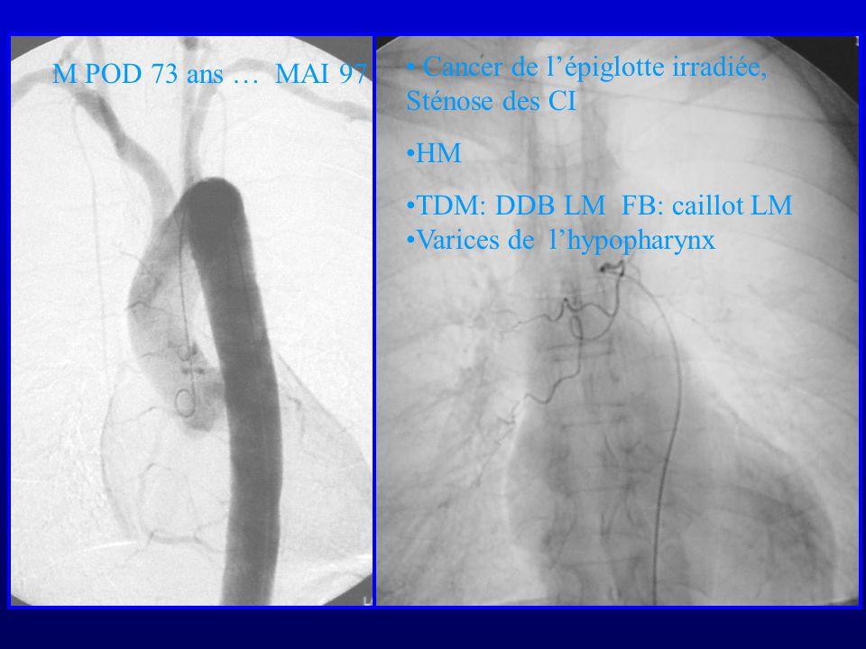 M POD 73 ans … MAI 97 Cancer de lépiglotte irradiée, Sténose des CI HM TDM: DDB LM FB: caillot LM Varices de lhypopharynx