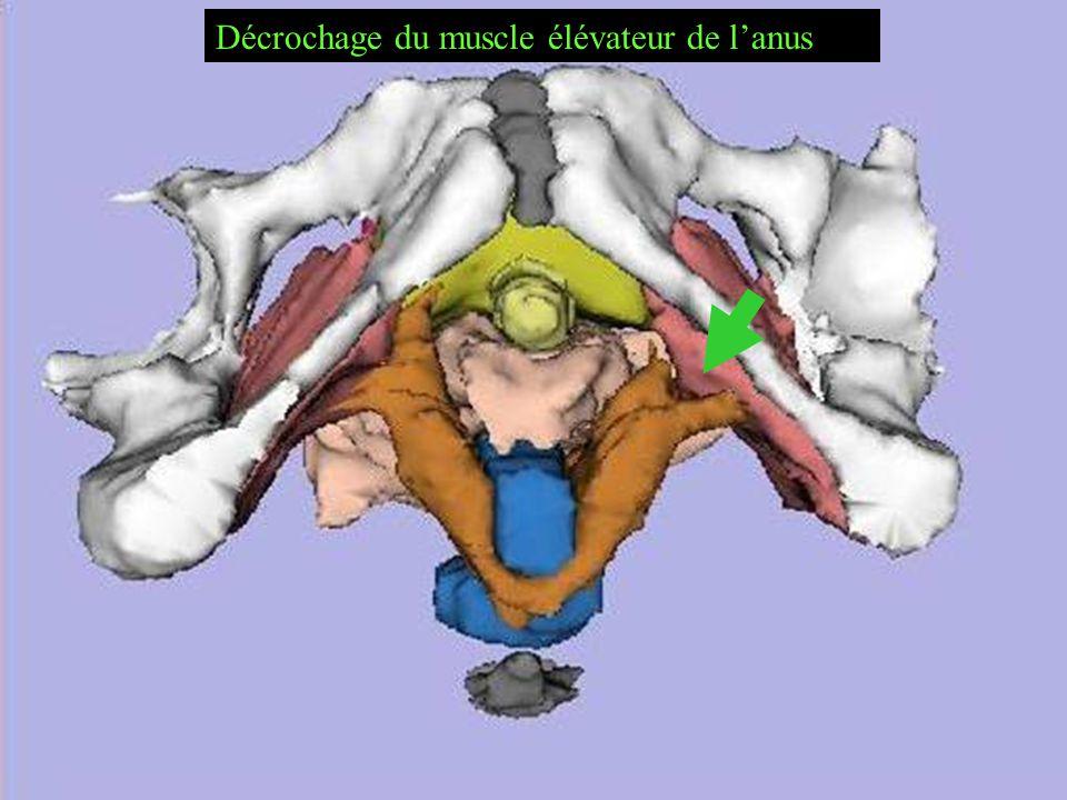 Décrochage du muscle élévateur de lanus