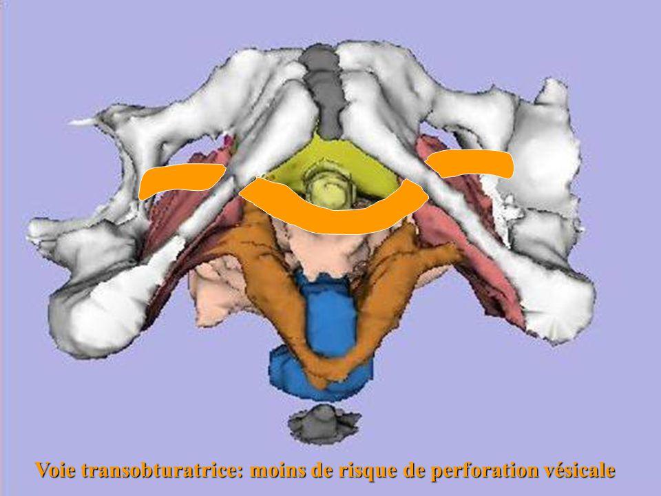 Voie transobturatrice: moins de risque de perforation vésicale
