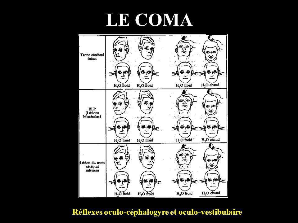 LE COMA Réflexes oculo-céphalogyre et oculo-vestibulaire