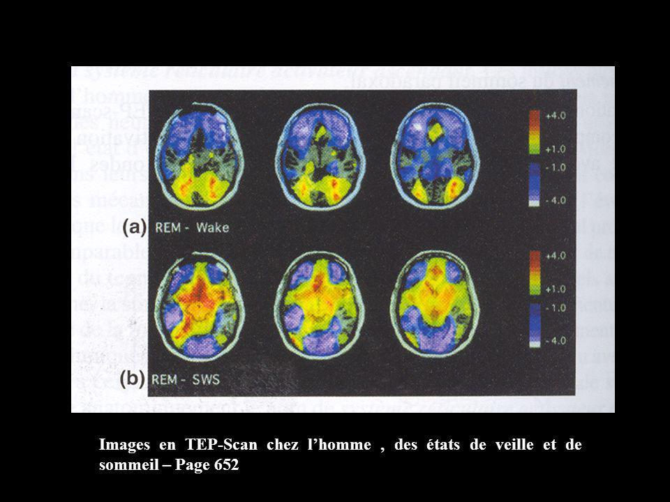 Images en TEP-Scan chez lhomme, des états de veille et de sommeil – Page 652