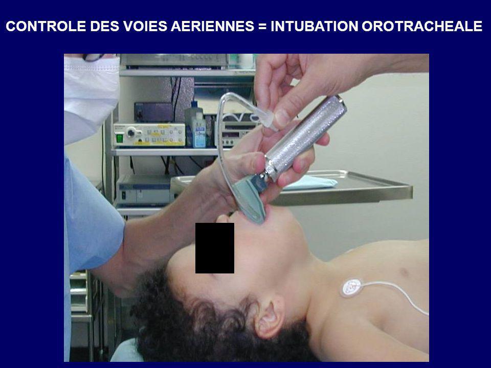 CONTROLE DES VOIES AERIENNES = INTUBATION OROTRACHEALE