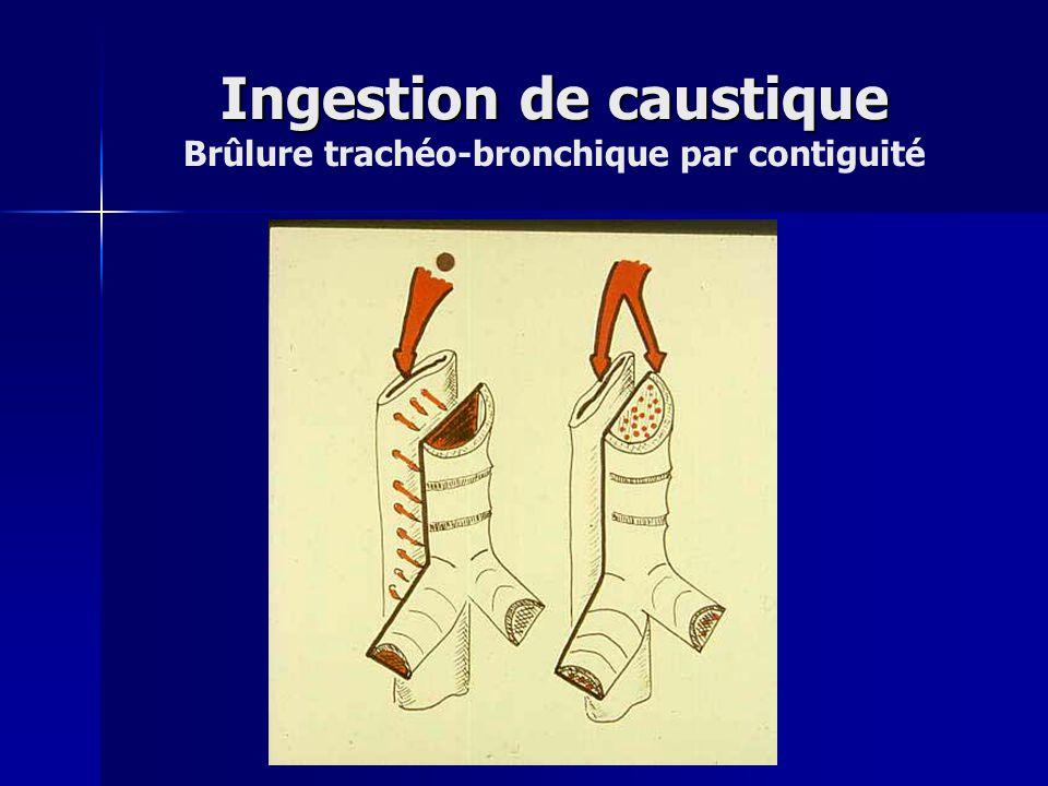 Ingestion de caustique Ingestion de caustique Brûlure trachéo-bronchique par contiguité