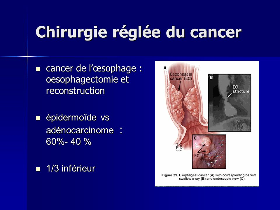 Chirurgie réglée du cancer cancer de lœsophage : oesophagectomie et reconstruction cancer de lœsophage : oesophagectomie et reconstruction épidermoïde