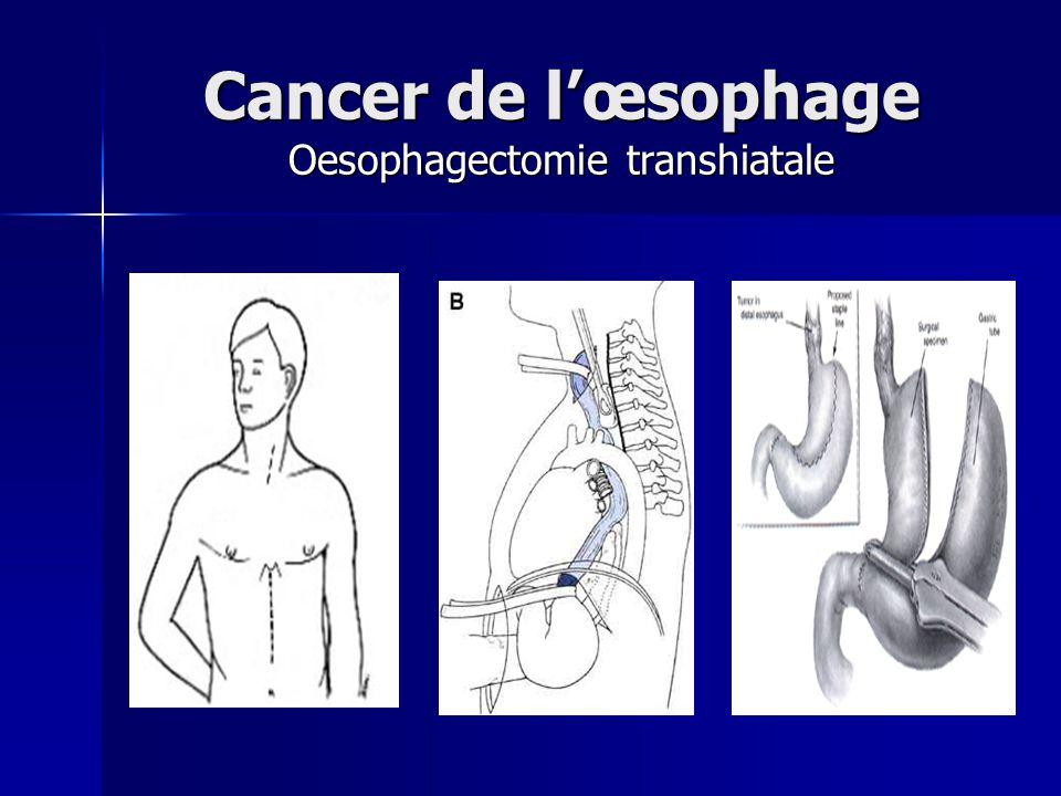 Cancer de lœsophage Oesophagectomie transhiatale