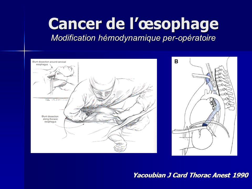 Cancer de lœsophage Modification hémodynamique per-opératoire Yacoubian J Card Thorac Anest 1990