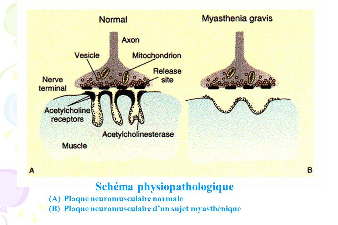 MYASTHENIE Défaut de transmission neuromusculaire Anticorps anti-récepteurs dacétylcholine (auto-anticorps présents chez 90 % des patients) Atteinte de la membrane post-synaptique Diminution du nombre de récepteurs membranaires Explications .