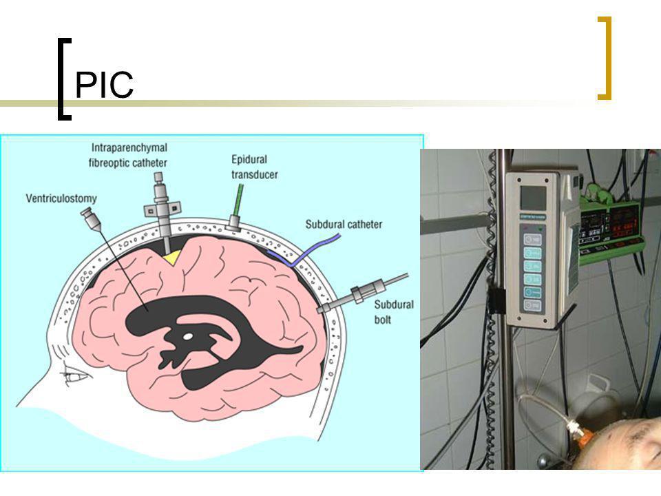 Hématome Oedeme Vasodilatation Hydrocéphalie Volume PIC Parenchyme =85% LCR =10% Sang =5%