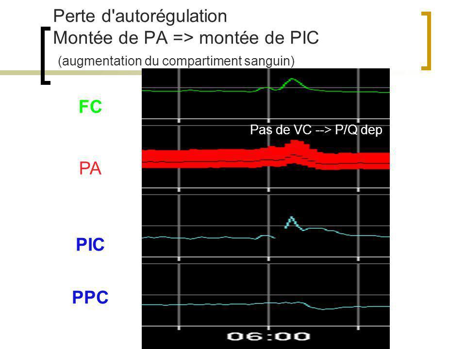 Doppler transcrânien Etudie la vitesse des GR dans les gros vx du polygone de Willis Analyse phasique