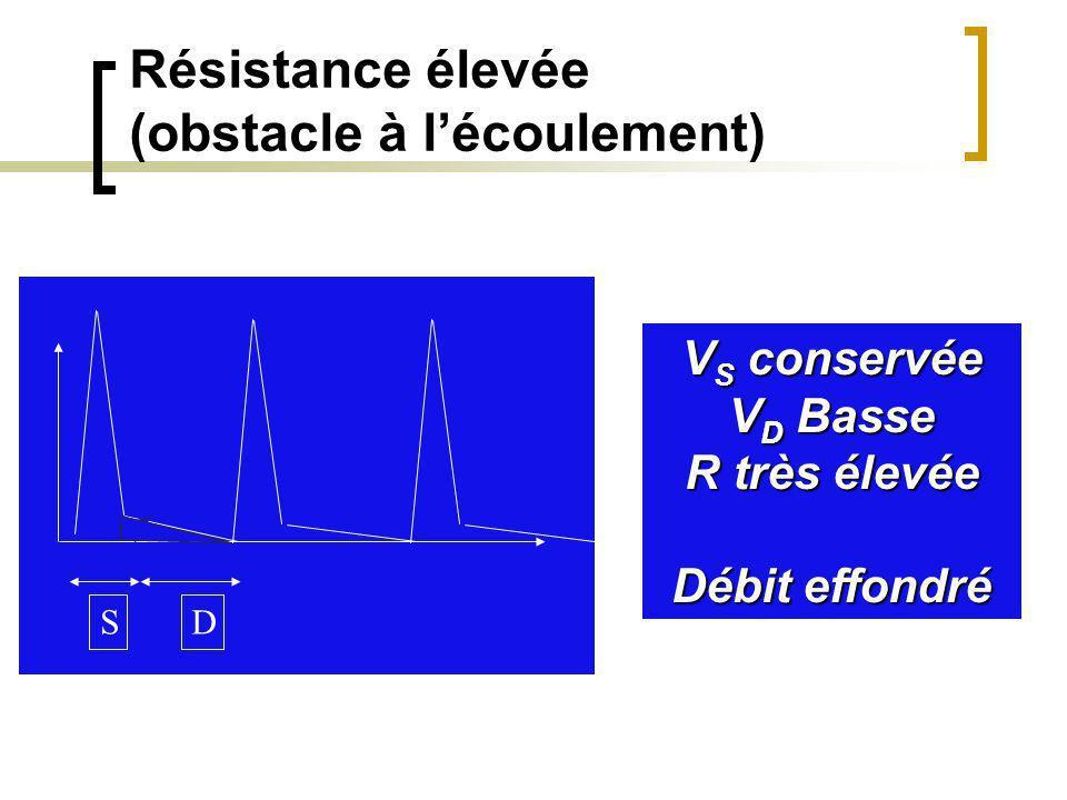 DTC: Vd basses => bas débit cérébral IR élevé (0,84)Moniteur PIC élevée PPC basse Hypocapnie35° ISCHEMIE