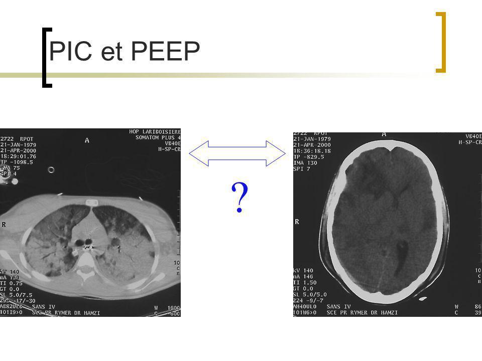 Jugulaire interne : veine valvulée Valve bicuspide ou tricuspide au niveau du bulbe jugulaire (2 cms au dessus de jonction avec veine sous clavière) Inconstante (environ 90% de la population) Parfois unilatérale