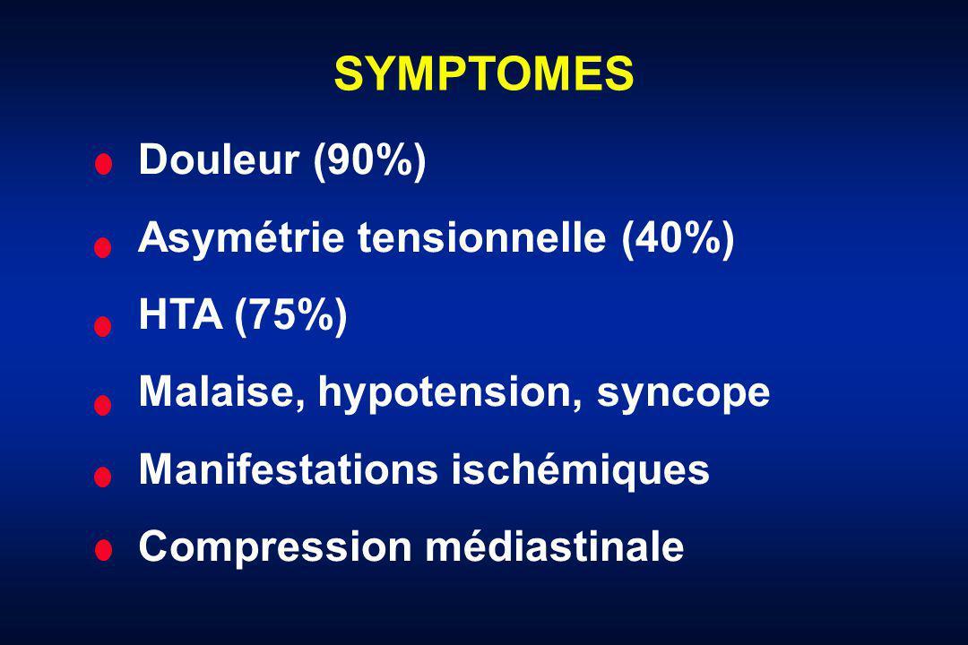 SYMPTOMES Douleur (90%) Asymétrie tensionnelle (40%) HTA (75%) Malaise, hypotension, syncope Manifestations ischémiques Compression médiastinale