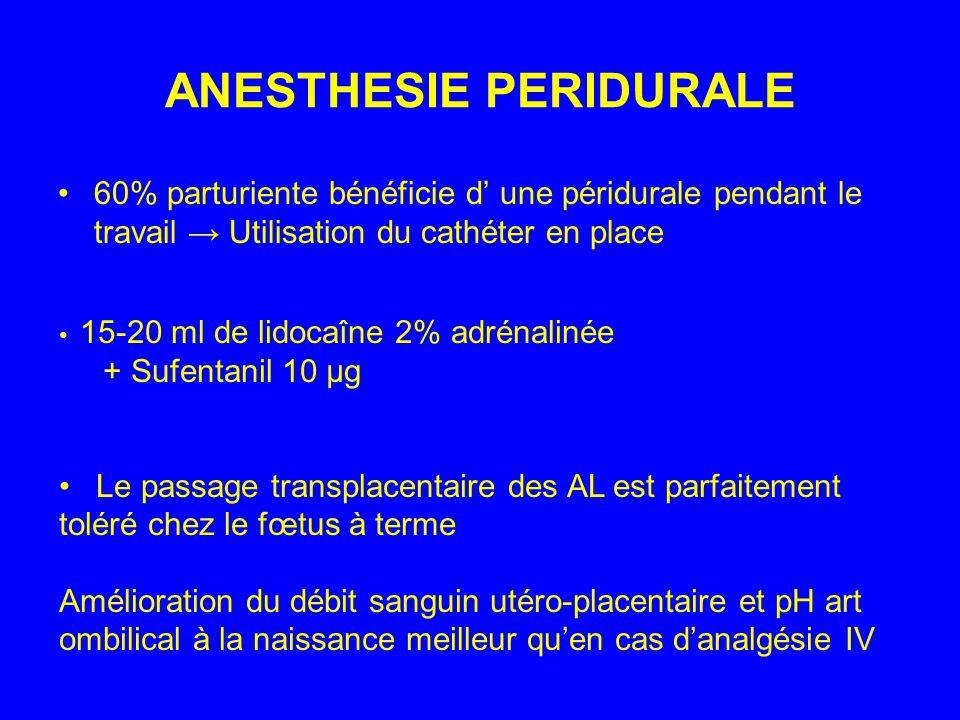 ANESTHESIE PERIDURALE 60% parturiente bénéficie d une péridurale pendant le travail Utilisation du cathéter en place 15-20 ml de lidocaîne 2% adrénali