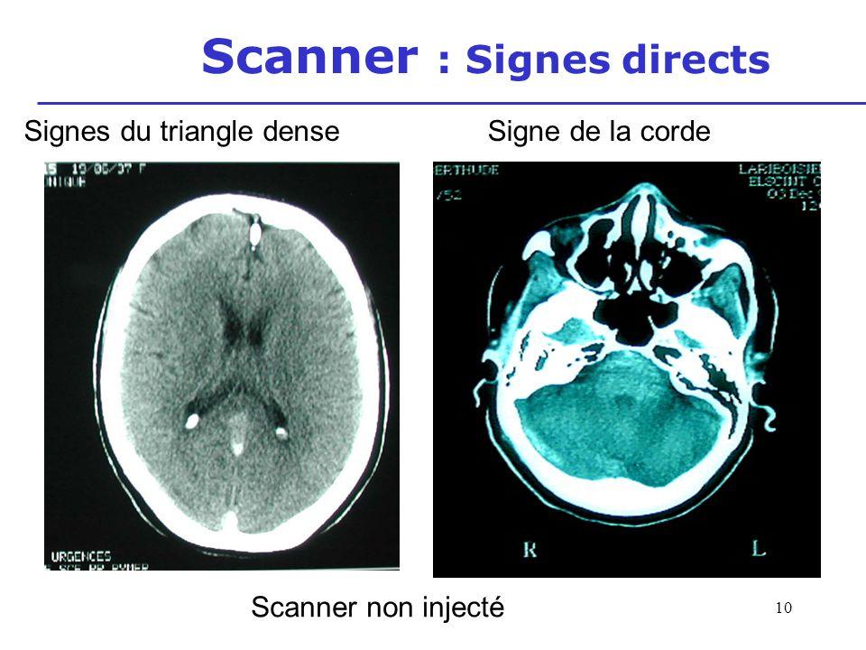 11 Scanner : Signes directs Scanner avec injection Signe du delta vide (triangle) Souvent retardé Non constant Faux positif division haute du sinus