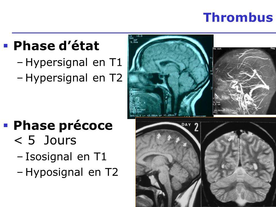 16 T 1 Isosignal initial IRM Occlusion du sinus latéral Hypersignal > 4 j