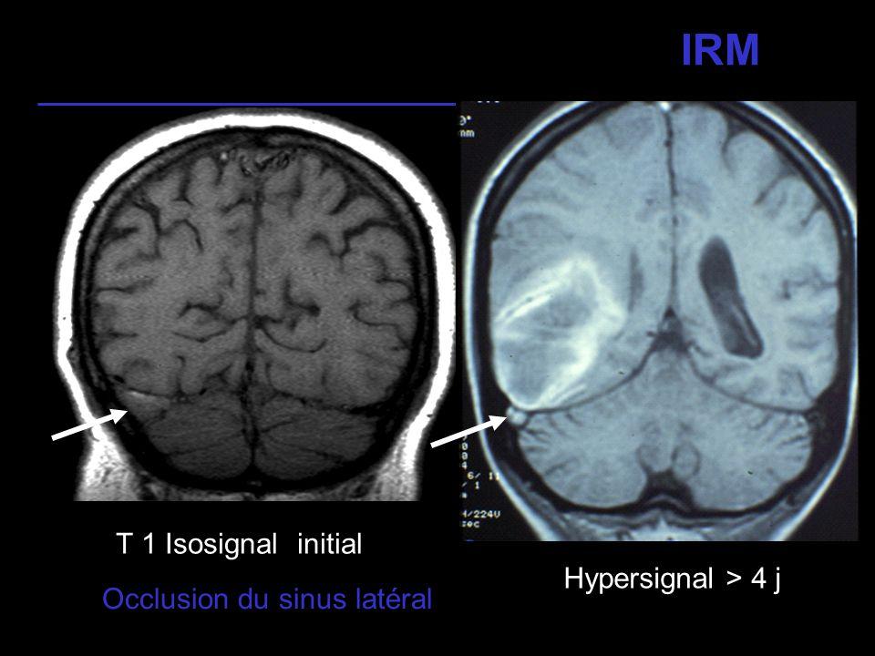 17 IRM Occlusion des sinus longitudinal et droit et des veines profondes Isosignal initial Hypersignal > 4 j