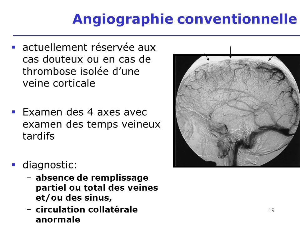 19 actuellement réservée aux cas douteux ou en cas de thrombose isolée dune veine corticale Examen des 4 axes avec examen des temps veineux tardifs di