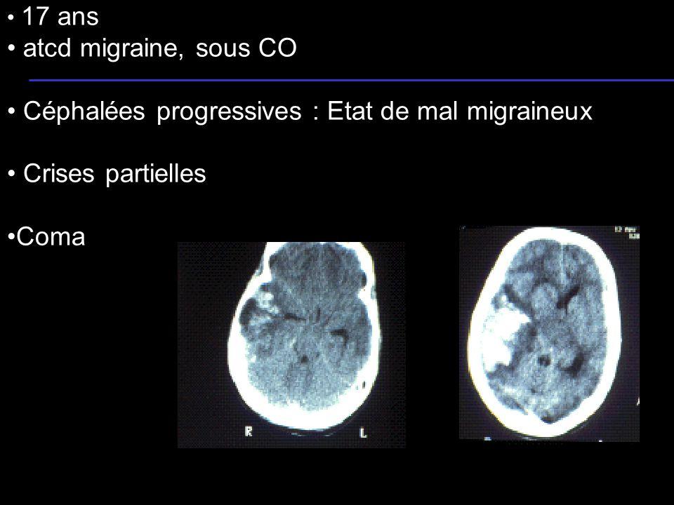 21 17 ans atcd migraine, sous CO Céphalées progressives : Etat de mal migraineux Crises partielles Coma