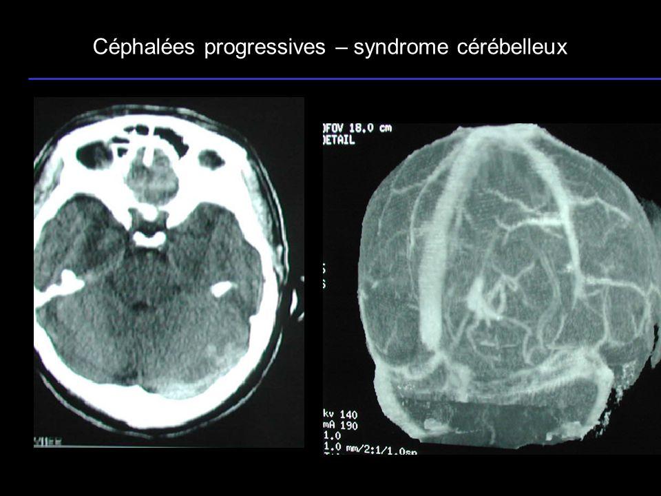 24 Céphalées progressives – syndrome cérébelleux